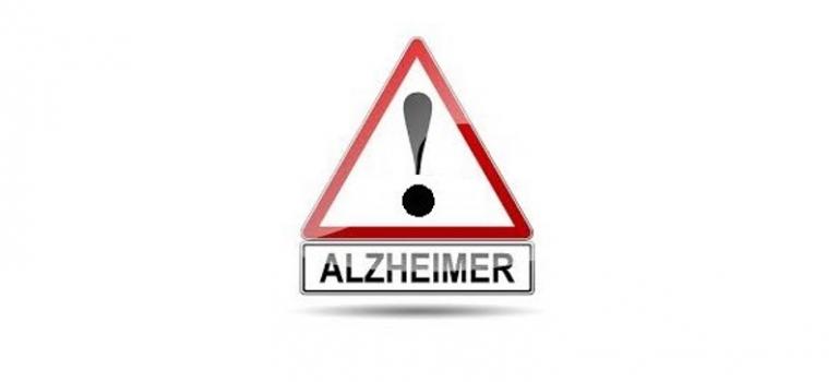 Alzhéimer: 10 signos de alarma